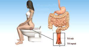 bệnh trĩ ngoại là gì