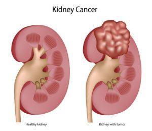 chế độ ăn phòng ngừa ung thư thận