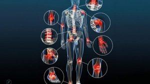 thuốc trị đau xương khớp malaysia
